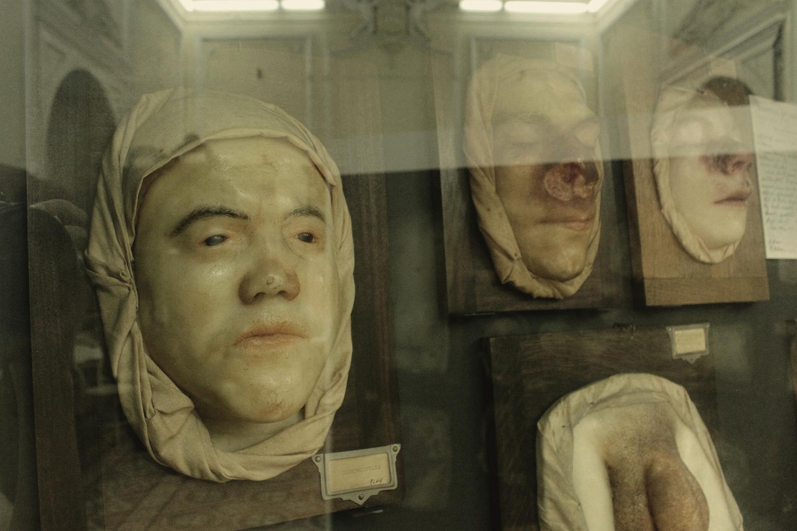 Wax models of syphilis lesions, Museum of Portuguese Dermatology (Museu da Dermatologia Portuguesa).