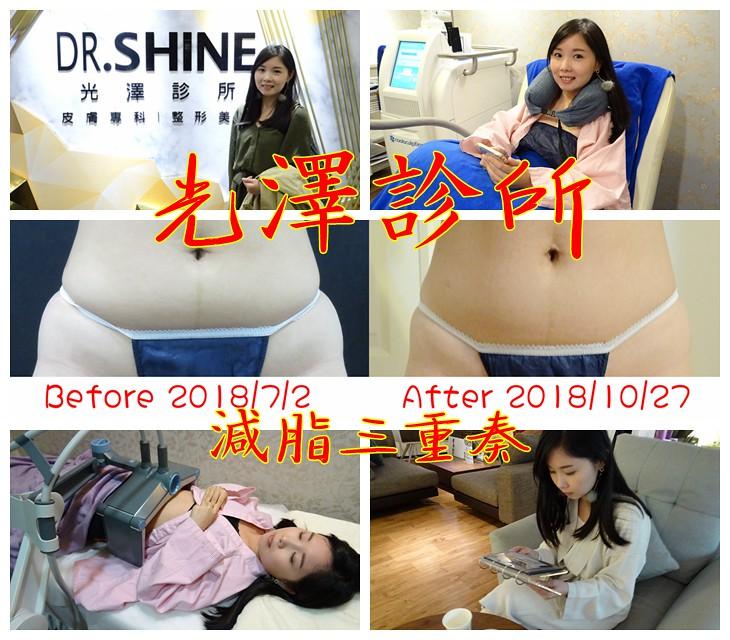 光澤診所。減脂三重奏。讓你悄悄的變瘦。三個月後效果驚人!