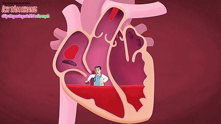 Người bệnh suy tim cần tuân thủ chỉ định của bác sĩ