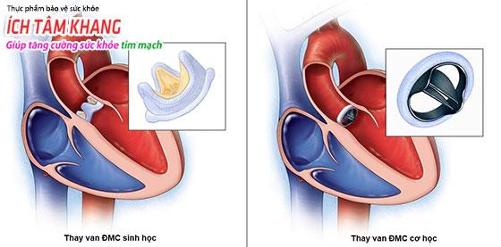 Phẫu thuật thay van tim tiềm ẩn nhiều rủi ro