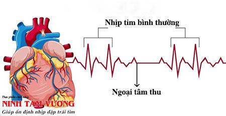 Ngoại tâm thu là gì? Vì sao tiềm ẩn rủi ro ở người tim mạch