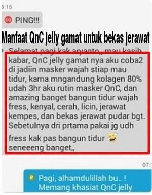 Testimoni QnC Jelly Gamat Sebagai Obat Penghilang Jerawat