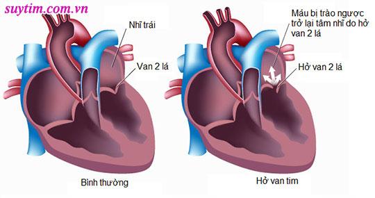 Hở van tim 2/4 là mức độ hở trung bình nhưng có thể tiến triển nặng theo thời gian