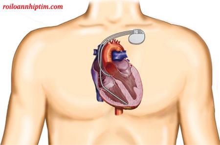 Máy khử rung đặt dưới da vùng ngực hoặc dưới xương đòn
