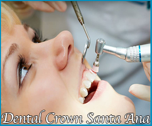 Crown Dentistry Santa Ana