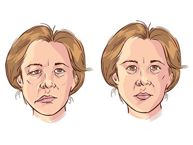 Co giật liên tục có thể khiến mắt và miệng của bệnh nhân chếch lên trên