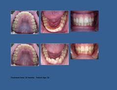 Invisalign Dentistry Dallas TX