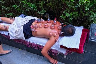Les ventouses sont très répandues dans la médecine chinoise. Luoyang