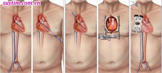 Mổ hở thay van tim qua đường mở ngực