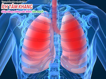 Phù phổi là một trong những biến chứng cấp tính của bệnh suy tim