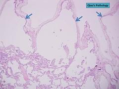 Qiao's Pathology: Pulmonary Placental Transmogrification