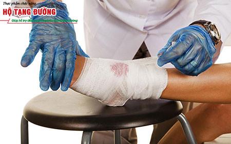 Biến chứng loét bàn chân của bệnh tiểu đường có thể gây hoại tử chi.