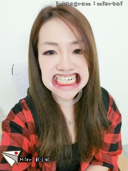 Dr.Min牙齒淨白推薦-桃園牙齒淨白推薦