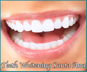 Dental Whitening Santa Ana
