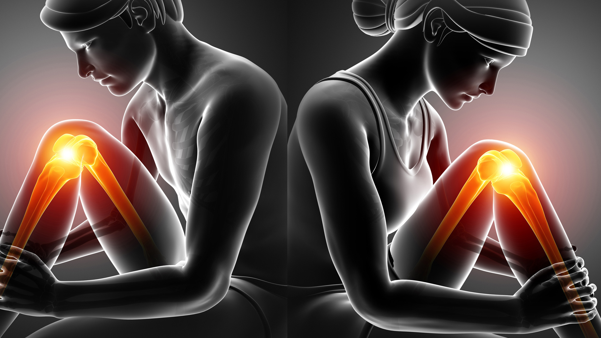 A graphic of a man and woman next to each other with pain in the legs highlighted.