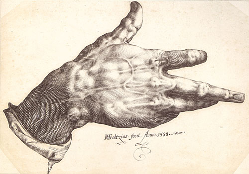 The malformed hand of Hendrik Goltzius, which was especially suited to the use of a burin. Goltzius's Right Hand, 1588 - pen and brown ink ; 9 x 12 5/8 in. (23 x 32.2 cm) - Teylers Museum, Haarlem