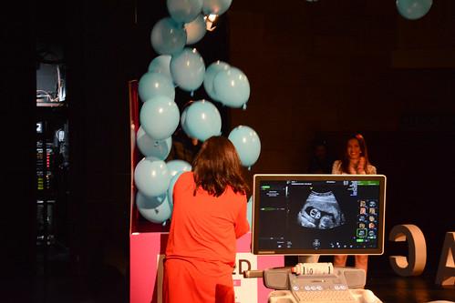 Dan za trudnice Madlenianum | Program II