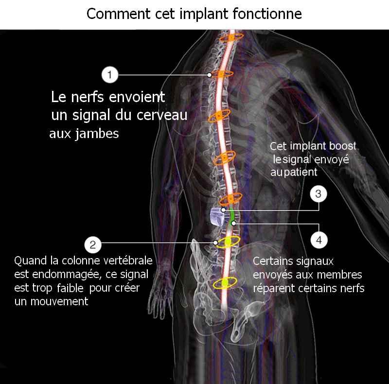 implant-fonctionnement-graphique