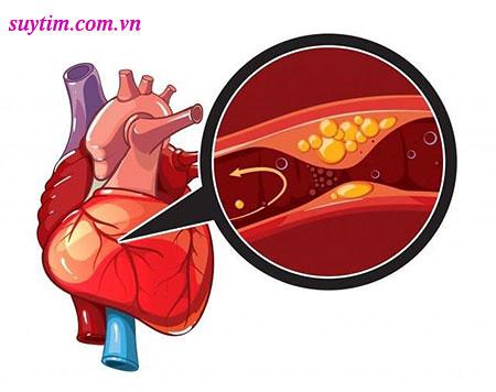 Giảm cholesterol, giảm xơ vữa vành là mục tiêu điều trị thiếu máu cơ tim quan trọng