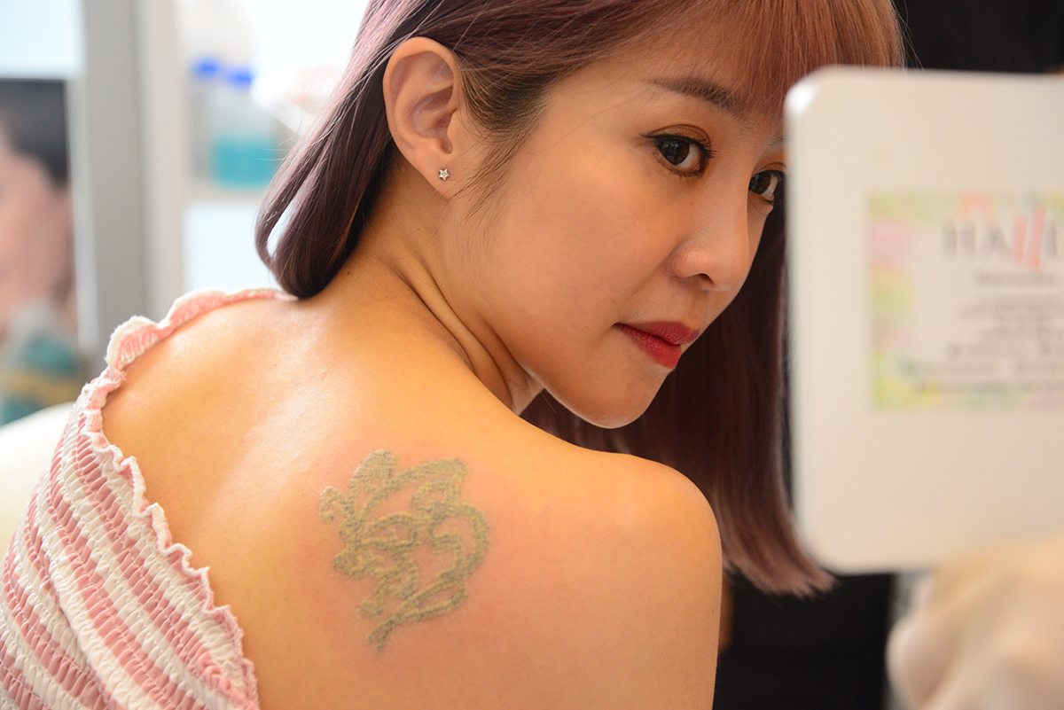 Tattoo_Removal_Picosure_Laser_Halley_Medical_Aesthetics_Singapore_6