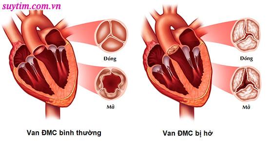 Tim bình thường và tim bị hở van động mạch chủ