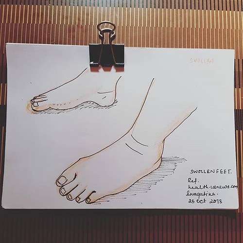 Swollen feet, based on my recent travel experience #swollenfeet #feet #inktober2018 #inktober #day17swollen #feet