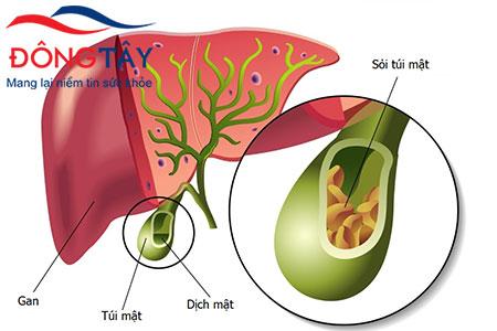 Sỏi mật là nguyên phổ biến nhất dẫn đến chỉ định cắt túi mật