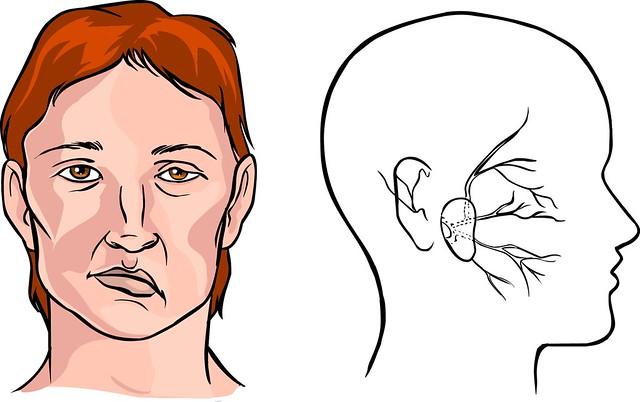 Co giật nửa mặt có thể làm biến dạng khuôn mặt