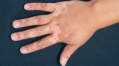 Pengobatan Vitiligo Secara Alami