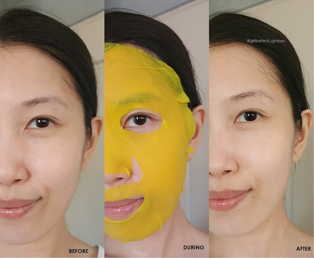 Eyenlip Calamansi Vitamin Solution Mask before and after