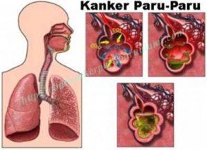 Cara Pencegahan Penyakit Kanker Paru Paru