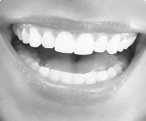 Dental Whitening Orange