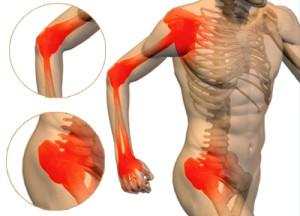 Jenis-jenis Dan Penyebab Peradangan Persendian / Arthritis