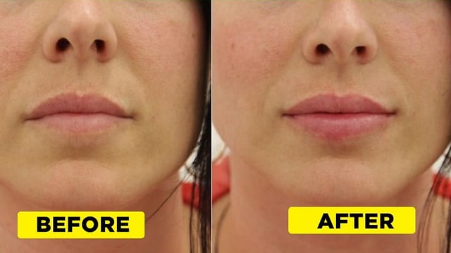 2668 13 Useful Tips to have Attractive Pink Lips 01