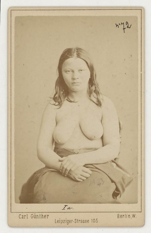 1883. Антропологические портреты шведов и норвежцев Вильгельма Юриниуса