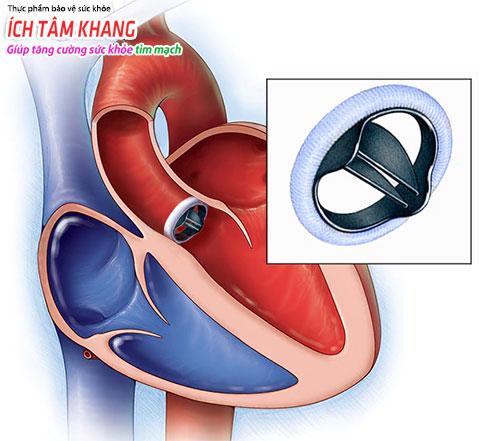 Phẫu thuật thay van tim thường được chỉ định trong trường hợp hở van nặng