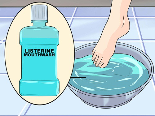 Cara Menghilangkan Kaki Pecah Pecah Dengan Listerine