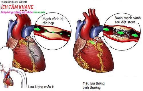 Phương pháp đặt stent mạch vành thường được chỉ định trong điều trị thiếu máu cơ tim