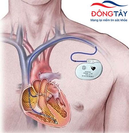 Đặt máy tạo nhịp tim ở dưới da vùng ngực