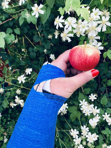 broken arm, september 2018 - new environmental friendly, biodegradable plaster made of wood