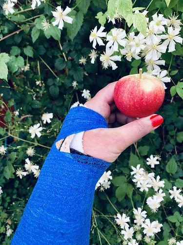 broken arm, september 2018 - new environmental friendly, biodegradable plaster made of wood